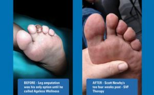 ageless-wellness-toes